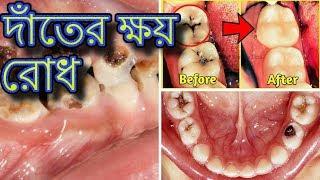 দাঁতের ক্ষয় রোধ ও দাঁত সাদা করার উপায় | Beauty Tips Bangla | Health Tips Bangla