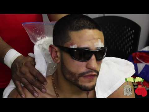 Miguel Cruz is a warrior and has the scars to prove it