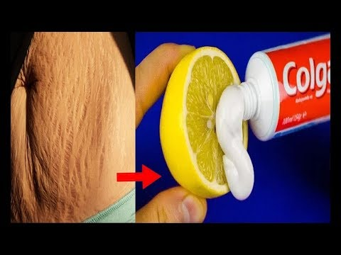 How To Get Rid of Stretch Marks Fast/Worlds best Remedy for Fast Stretch mark Removing