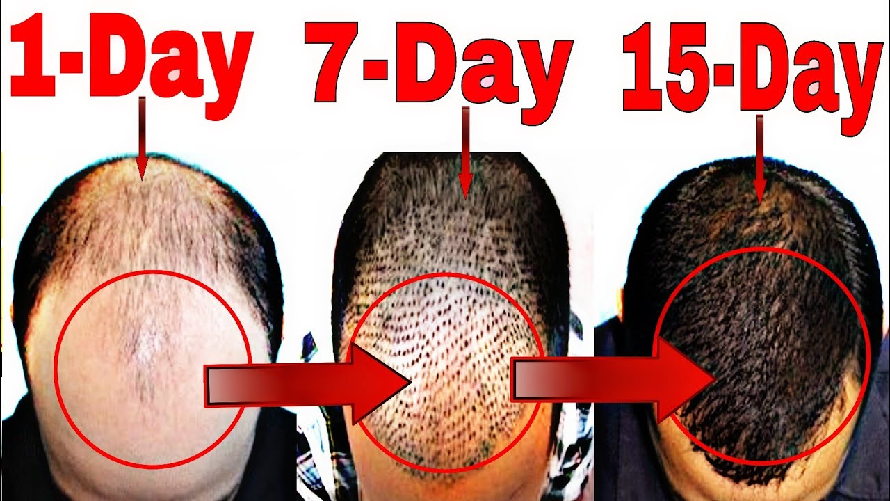 How to Stop Hair Fall Naturally   Grow Hair Faster(Men ...