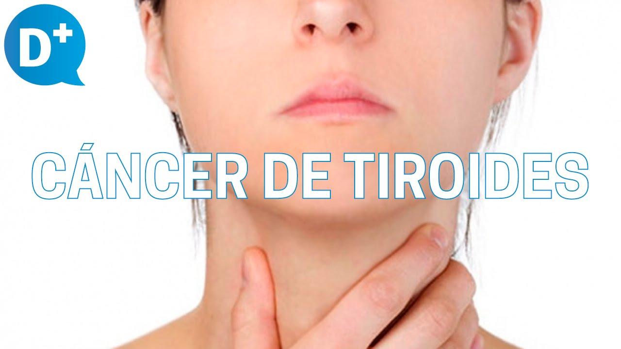 como se da solfa syllable tiroides