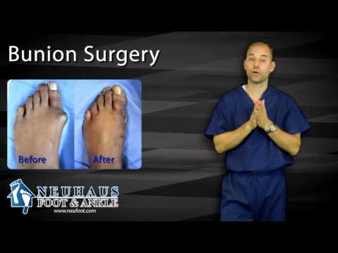 What To Expect After Bunion Surgery