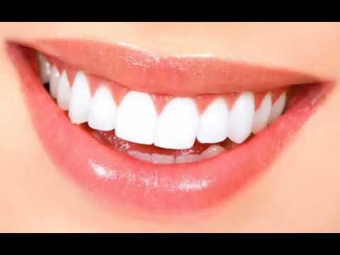 Dahsyat Ternyata Inilah 8 Cara Memutihkan Gigi Yang Cepat Dan