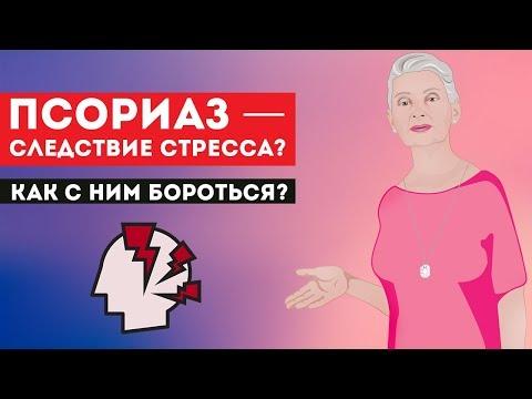 Псориаз — следствие стресса? Как бороться? Отвечает Н.Г. Байкулова
