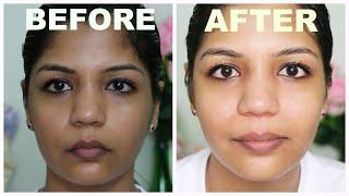 Clearmin Fairness Soap के फ़ायदे Clearmin Fairness Soap review For Hyper Pigmented Skin Disorders