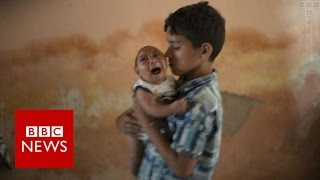 Brazil Zika outbreak: What is happening to Brazil's babies? BBC News