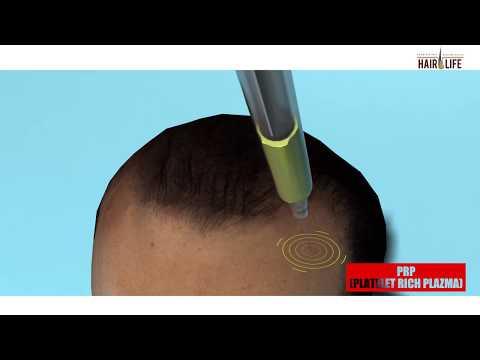 Hair PRP Treatment