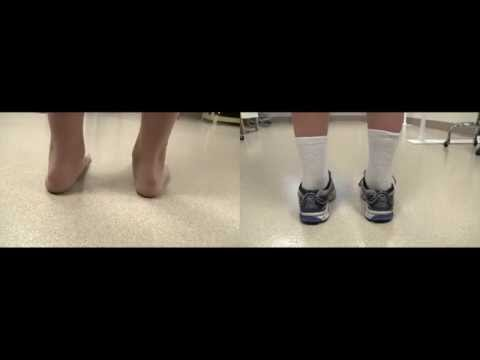 Before & after: low tone pronation   DAFO 5