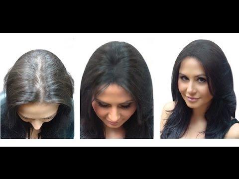 Форум выпадение волос после родов