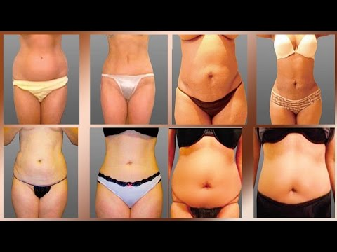 Liposuction Cosmetic Surgery Before and After in Mexicali Mexico
