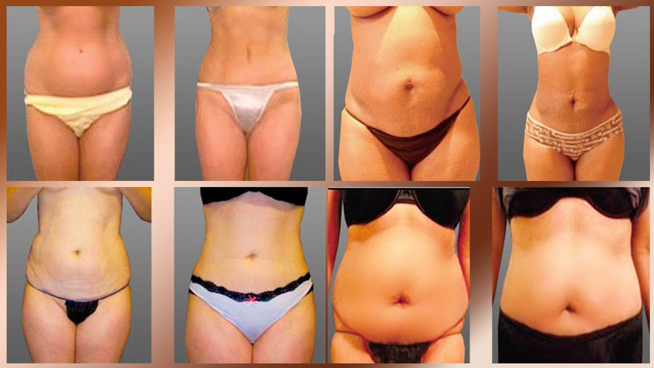 How to choose from the Liposuction clinics in Ajijic, Mexico