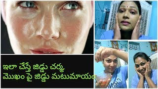 Best skin care routine for oily skin in telugu|home remedy for oily skin in telugu