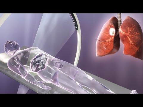Lungenkrebs Endstadium Ersticken