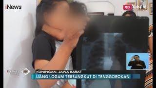 Akibat Tak Ada Biaya, Bocah 3 Tahun Menahan Sakit Pasca Telan Uang Logam - iNews Siang 12/09