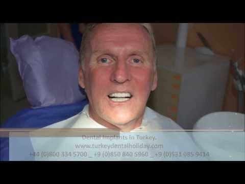 Dental Implants in Turkey - Review