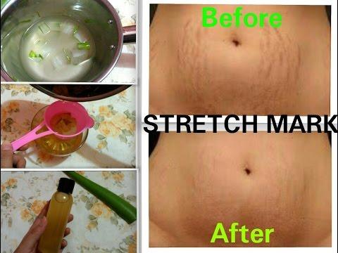 #DIY TERBUKTI !! Cara Menghilangkan Stretch Mark Permanen