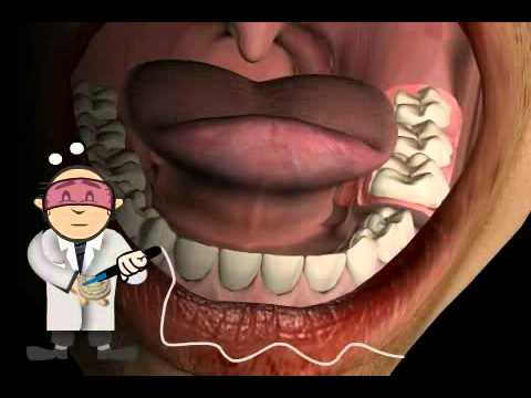 Why Partial Denture turn often in Total Denture (total prothesis)