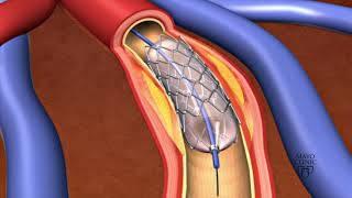 Animation - Coronary stent placement