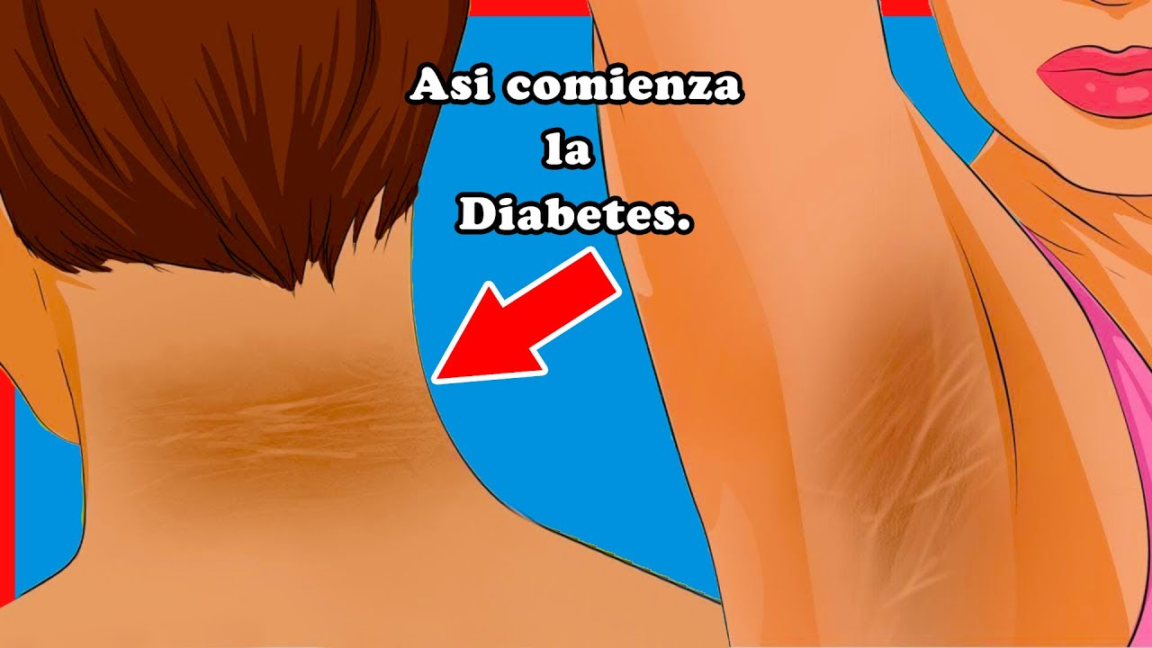 9 síntomas de inicio de DIABETES, no lo ignores!
