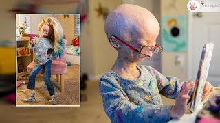 Adalia Rose Emotional: Less Than 500 People in the World Have My Condition ! ~ Body Bizarre!