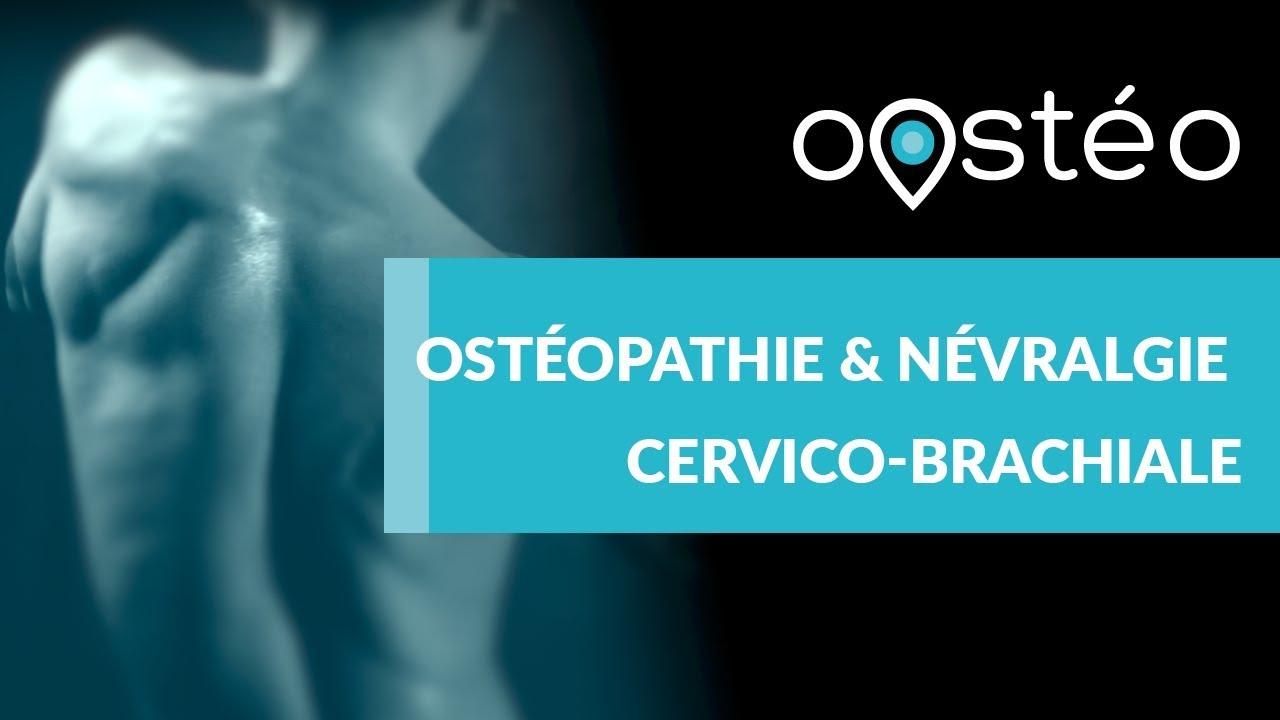 Consulter un ostéopathe pour une névralgie cervico-brachiale ...
