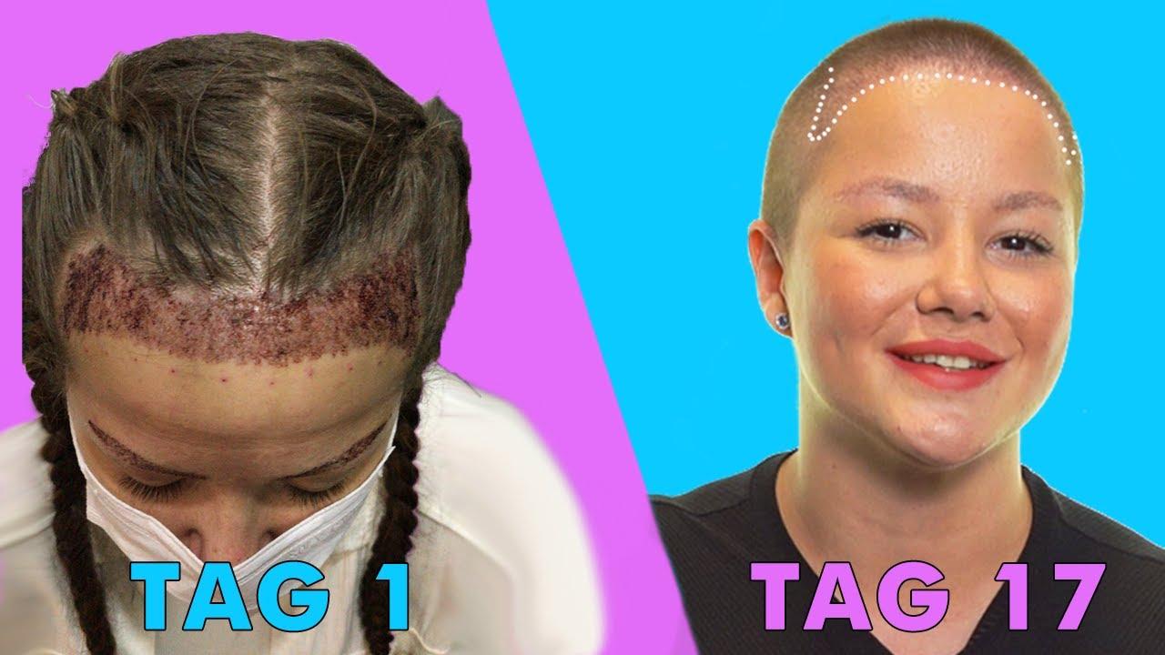 Erfahrungen haartransplantation Haartransplantation negative
