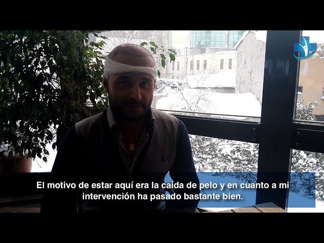 Trasplante Capilar Turquía - Testimonio por Esposito - Dra. Oyku Celen/Skin Health Turkey