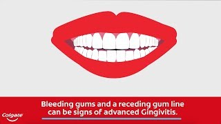 Bleeding Gums and the Signs of Gingivitis   Colgate®
