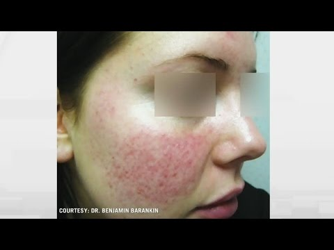 Rosacea relief: How to treat persistent facial flushing