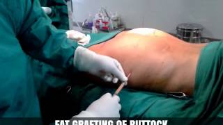Fat Grafting - Harley Street Cosmetic Clinic Thumbnail