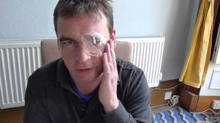 Cataract surgery: my thoughts after the operation