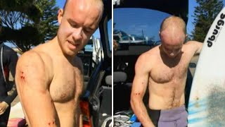 'I just punched it in the face': Surfer describes fending off shark