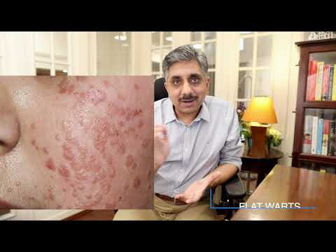 Hpv on face treatment. Warts on skin causes. Are warts on skin contagious.