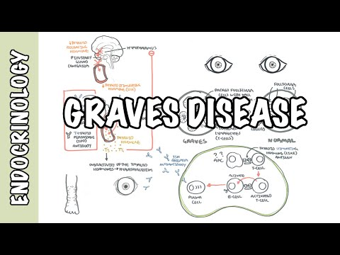 Graves Disease - Overview (causes, pathophysiology, investigations and treatment)