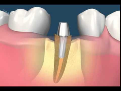 Оперативные вмешательства (Обучающее видео для стоматологов)
