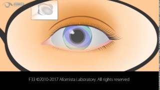 Astigmatism Correction via Cylinder in Prescription Glasses
