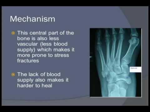 461 - Navicular Stress Fracture