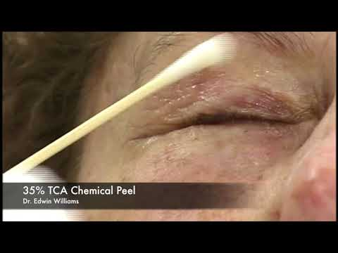 35% TCA Chemical Peel by Dr Edwin Williams for wrinkles and sun damage