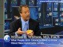 Dr. William E. Whitson - Cataract Surgery
