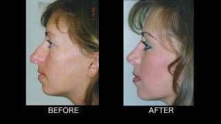 Dramatic Rhinoplasty