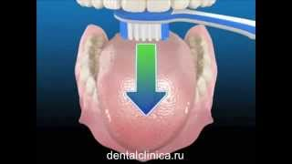 Стоматология лечение зубов имплантация протезирование в Москве Санкт-Петербурге европейское качество(, 2014-03-28T22:26:00.000Z)