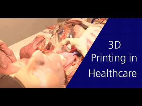 3D Printing Brings New Dimension to Healthcare