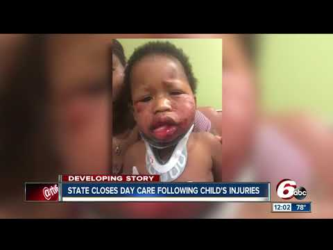 State closes Indianapolis day care after 1-year-old seriously hurt