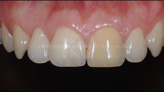 видео Отбеливание зуба, потемневшего изнутри
