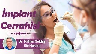 Dr. Turhan Güldaş - İmplant Cerrahisi Ömrü Ne Kadardır?