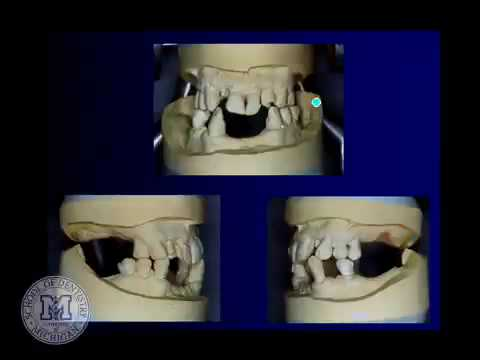 DENT 718: Tooth supported overdentures