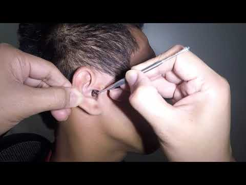 Best of Blackheads on the neck: Session #3 - Part 1