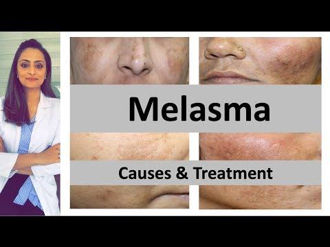 how-to-treat-dark-spots-|-melasma-|-causes-&-treatment-|-dermatologist-|-dr.-aanchal-panth