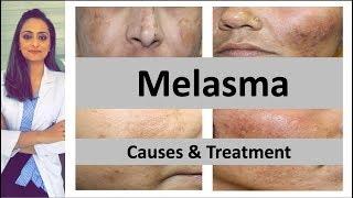 How to treat dark spots | Melasma | Causes & treatment | Dermatologist | Dr. Aanchal Panth