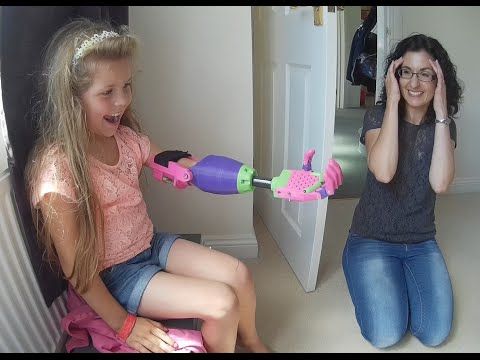 Watch A Girl Named Isabella Unpack A New 3-D Printed Arm
